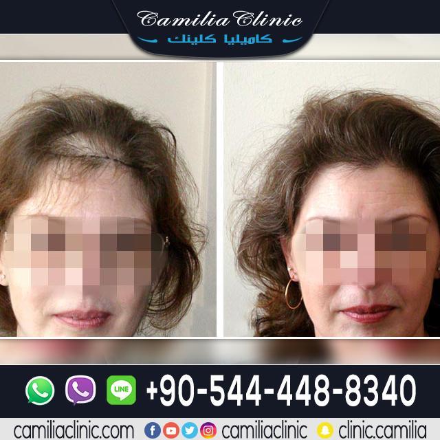 زراعة الشعر تركيا للنساء