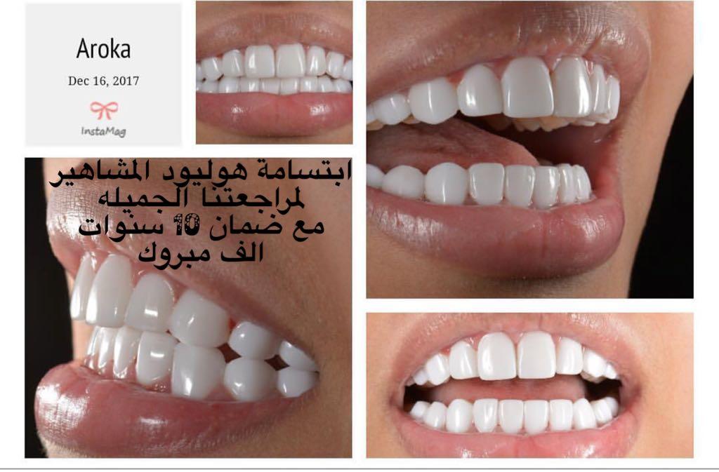 عياده اروكا لتقويم وتبيض الاسنان شمال الرياض 0545359682 عياده اسنان شمال الرياض 750672236
