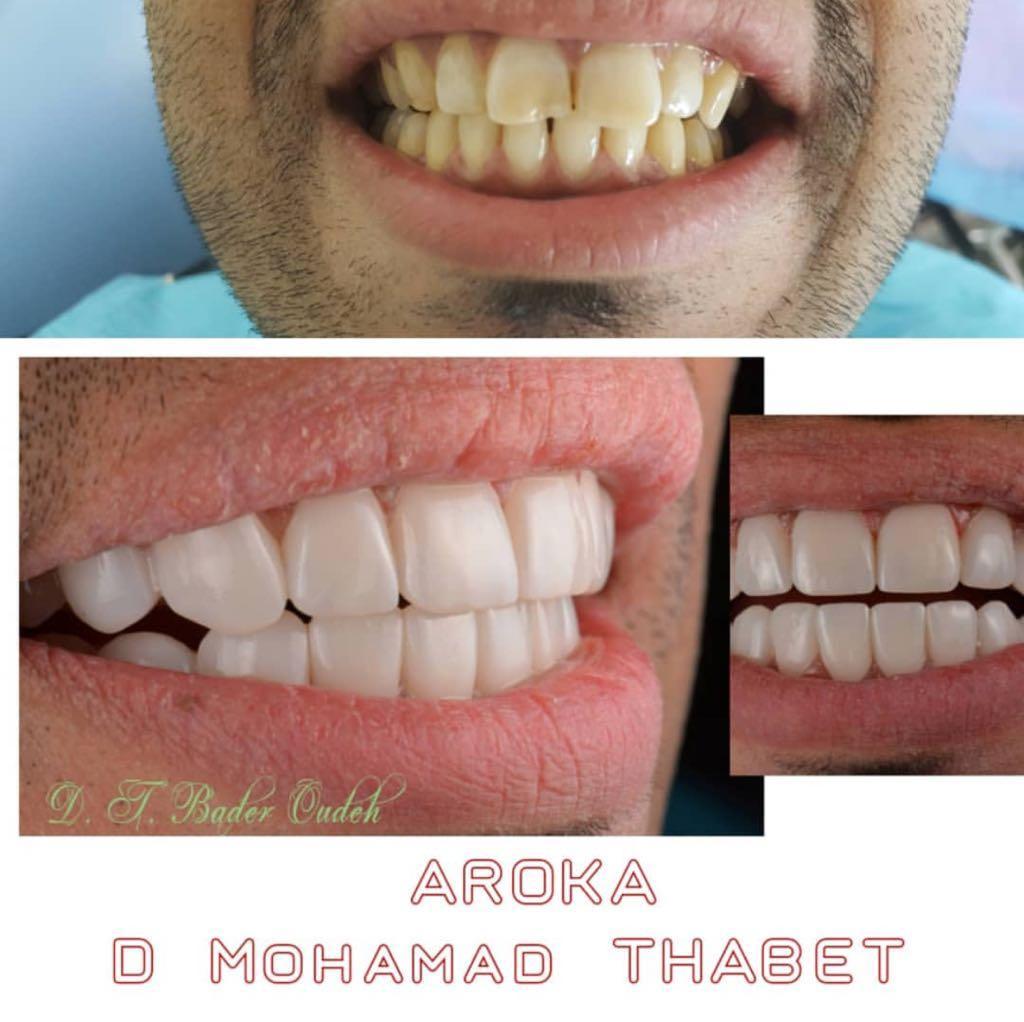 عياده اروكا لتقويم وتبيض الاسنان شمال الرياض 0545359682 عياده اسنان شمال الرياض 947864159
